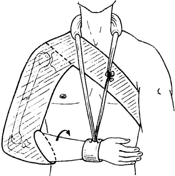Лечение перелома шейки плеча