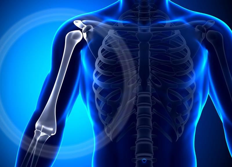 Перелом шейки плеча у пожилых