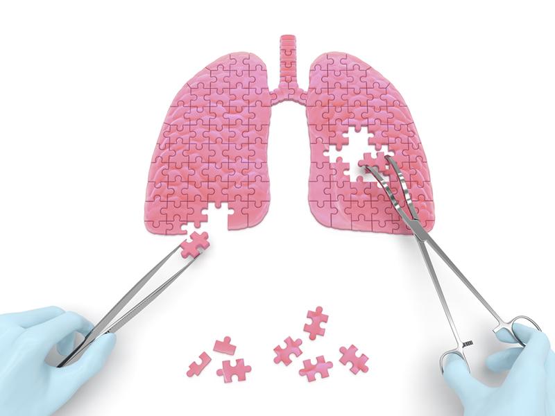 Профилактика туберкулёза у пожилых