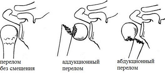 Разновидности переломов шейки плеча