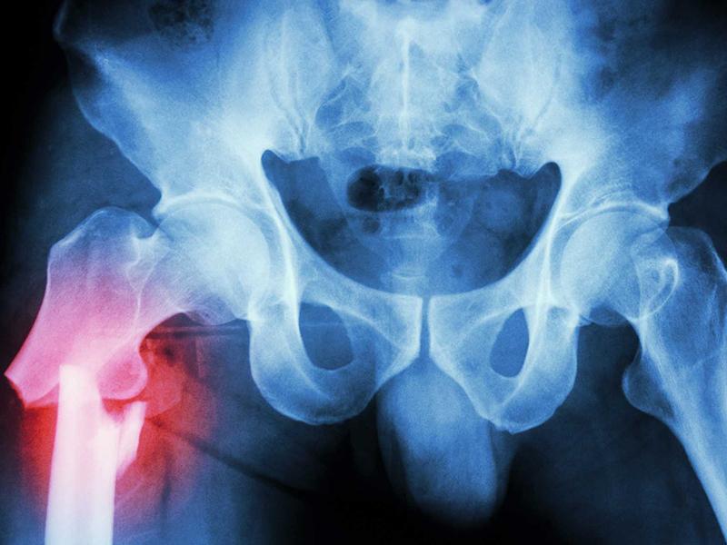 Симптомы перелома шейки бедра