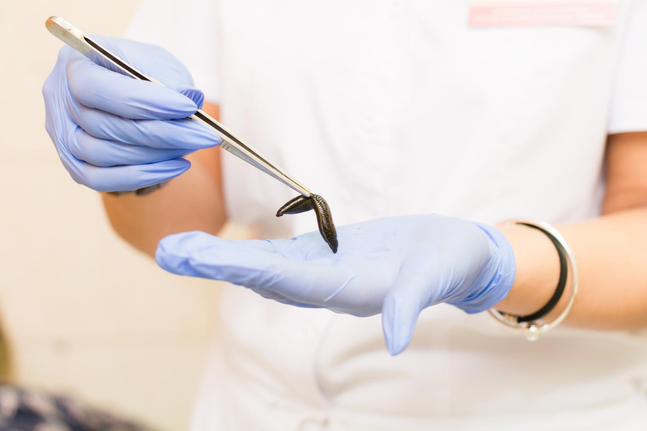 Doctor holding a medical leech